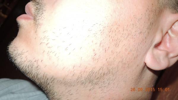 натуральные средства для усиления роста волос